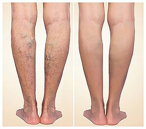 varicose-veins-before-and-after