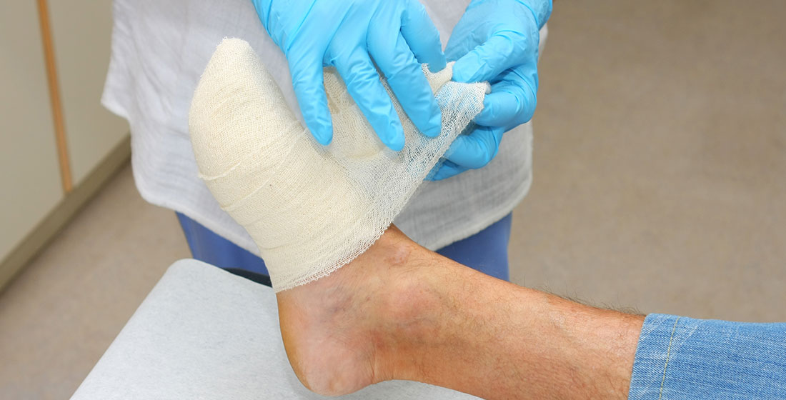 treating-foot-wound